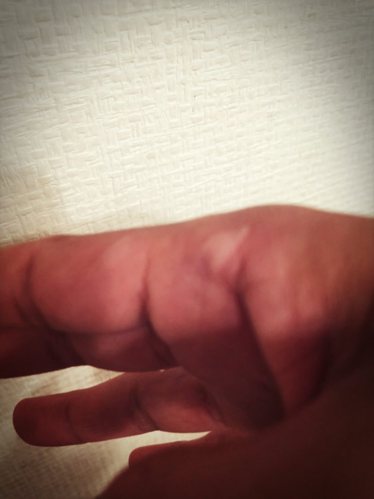 痛い ない 冷やし やけど 指 と て